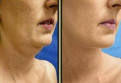 Whatever your age, you can pluck up and firm a sagging second chin to make you look younger and have a sharper lower face. Use face toning exercises to regenerate your face a neck for a fresh complexion and for a more shapely appearance http://www.facelift-without-surgery.biz/faceliftwithoutsurgery.html #naturalfacecare #facial #skincare #skincareregimen #beautytipasecrets #beautycare #faceexercise #organictoning #chinexercise