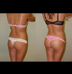 Before and after squats! Motivation at its best!