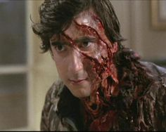 JACK aka actor Griffin Dunne after he was mauled by a Werewolf on the English Moors.