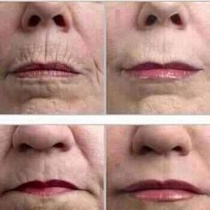 Look at these amazing results using our line of skin care from It Works Global. Lifting Lip and Eye Cream is incredible. https://shaynacross.myitworks.com/Home