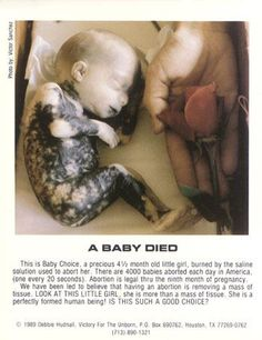 Pro Life. Abortion is Barbaric!  this poor little white girl.
