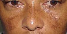 Melasma  Here are a few forums and discussion threads on melasma to get you started:   http://skincarerx.com/phorum/list.php?3   http://www.skincaretalk.com/melasma/   http://www.curezone.com/forums/f.asp?f=665   http://essentialdayspa.com/forum/viewthread.php?tid=12036   http://abchomeopathy.com/forum2.php/417/