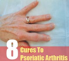 5 Ways to Reduce Stress With Psoriatic Arthritis picture
