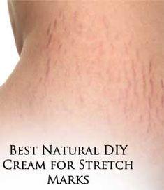 Best Natural DIY Cream for Stretch Marks