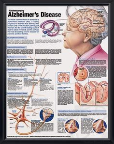 ?understand the neurology of dementia essay Dementia is not a disease by itself, likewise a natural part of ageing it is a word that illustrates cluster of symptoms these include loss of memory, decline in movement and coordination, inability to communicate, think and reason.