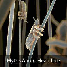 Do pets spread lice? Do lice carry disease? Clear up 4 common misconceptions about head lice.