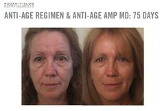 The client is using Rodan + Fields Anti Age clinical skin care regimen.  The ANTI-AGE Regimen is a comprehensive skincare system that layers cosmetic ingredients and proven peptide technology to visibly firm skin and reduce the appearance of lines, wrinkles and enlarged pores. Learn more here: https://kberney.myrandf.com/Shop/Anti-Age