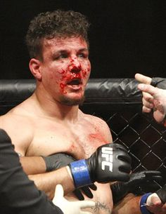 Frank Mir busted up by Brock