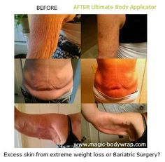 excessive weight loss, bariatric surgery, tips and solutions for weight loss, www.magic-bodywrap.com