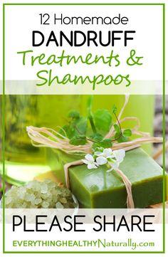 Homemade dandruff treatment and Shampoo