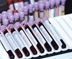 Blood Test Might Spot Pancreatic Cancer Early, Study Finds
