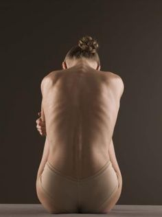 exercises to help scoliosis