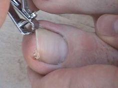 How to Remove an Ingrown Toenail