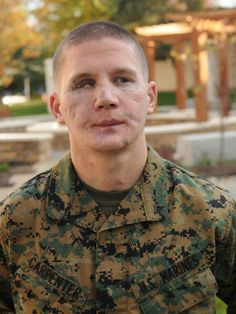 """We owe a huge thank you to William """"Kyle"""" Carpenter. He'll soon become the eighth living veteran of U.S. combat in Iraq and Afghanistan to receive the Medal of Honor, the nation's highest military award. Carpenter lost most of his jaw and an eye when he fell on a grenade to shield a fellow Marine from the blast. He was labeled dead on arrival at a field hospital - but he fought his way back.  He spent 2½ years in a hospital as doctors worked to rebuild his body. Continued:"""