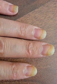Home Remedies for Nail Fungus ~~~~ terrified of getting this on my toes!  One reason I don't wear toe nail polish, so no one can think I'm hiding anything!  Will research this, as I've been told only harmful Rx can cure this.