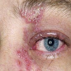 Symptoms & Treatments Of Eye In Shingles More