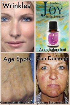 cicatrice visage franck ribery 5 jours