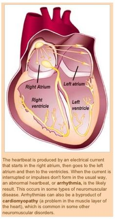 """The heart's """"master pacemaker"""" is the sinoatrial (SA) node (Upper R-atrium).  Here electrical impulses quickly spread through the R  L atria.  The atrioventricular (AV) node (Lower R-atrium) is stimulated.  The heart's lower chamber (the ventricles) fill with blood  contract. The R Bundle is His are stimulated next followed by the Purkinje fibres.  The ventricles contract  the blood is ejected.  Any abnormalities in the heart's electrical pacing system results in a cardiac arrhythmia."""