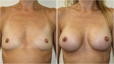 Before you consider risking your health and safety with breast augmentation surgery or implants, Discover The Best Kept Secrets To Natural Breast Enlargement With this 10 Day Power Course....