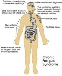 Natural Cure For Chronic Fatigue Syndrome