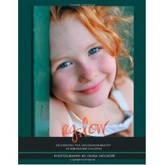 Aglow: Celebrating the Uncommon Beauty of Redheaded Children (Paperback)  http://www.picter.org/?p=1426993781