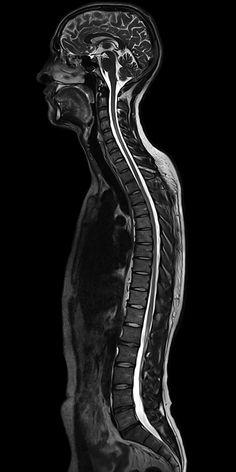 Whole spine MRI