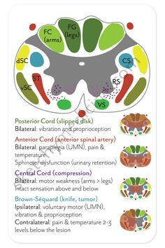 Spinal Cord Injuries Pocket Card