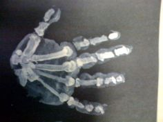 X-ray handprint craft!  Just make child's handprint with white paint on black paper.  Later, a parent can draw the bones on over it... you can even make it anatomically correct, and label each set of bones.  The foot would work for this as well!  Such a GREAT idea!