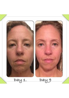 9 days of nerium. Notice puffiness and darkened circles have diminished under eyes, forehead lines are almost gone, and Pierson shin are significantly smaller. Drastic change to upper eyelid too, they are no longer droopy and bulging. Www.youngnskin.nerium.com