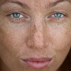 EFFECTIVE HOME REMEDIES FOR AGE SPOTS