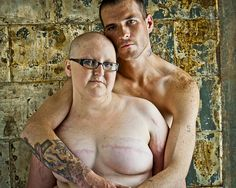 The SCAR project: dedicated to women with breast cancer from 20-40. This picture depicts a woman, who has had bilateral breast surgery, chemo, steroids and has the striae, weight gain, moon facies AND the love of her partner. Just amazing.