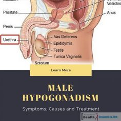 Male Hypogonadism: S