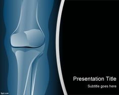 Radiology PowerPoint Template is a free PPT template with X-Ray background