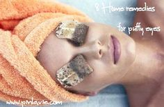 8 home remedies for puffy eyes