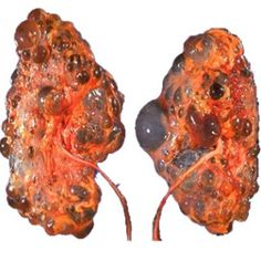 Natural Cure For Kidney Diseases