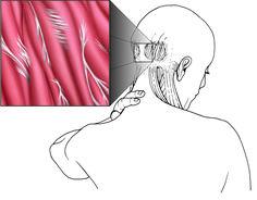Treating TMJ Pain Naturally
