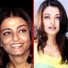 Aishwarya Rai plastic surgery photos