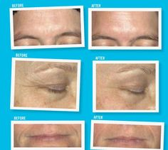 More examples of Rodan & Fields Anti Aging Product line. Check out the full Anti Aging Regimen here: https://kberney.myrandf.com/Shop/Anti-Age
