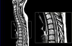 SE PDW-image of the spinal cord in a patient with MS