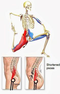can tight hip flexors purpose belly ache