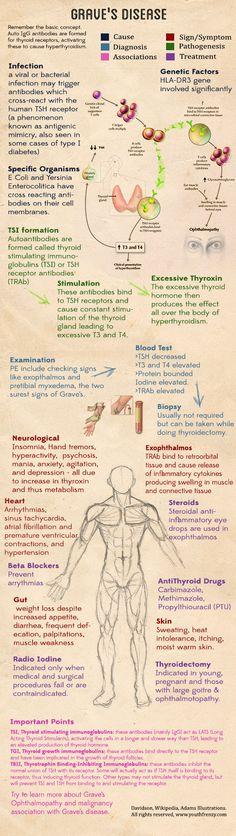 Graves disease symptoms