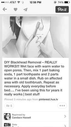 BEST WAY TO GET RID OF BLACKHEADS!!!!