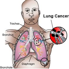 Cancer is a disease characterized by uncontrollable cell growth that harms the body by forming lumps or masses called tumors. If not detected at an early stage,