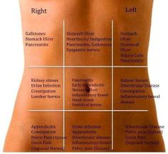 map of locations to help identify abdominal/stomach/belly/pelvis pain