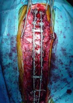 Back brace and spondylothesis