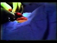 {Plastibell Infant Circumcision} Watch every procedure before you OK it.