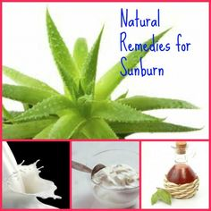 Natural Home Remedies for Sunburn