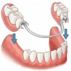 Qualities And Procedure Of Partial Dentures