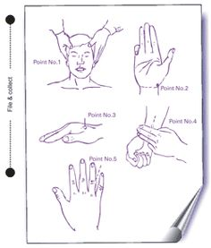 Migraine pressure points
