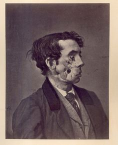 "Shell Wound of the face, with great destruction of the soft parts."" Private Joseph Harvey, Co. C, 149th New York Volunteers. Wounded at Chancellorsville, Virginia on May 3 1863."